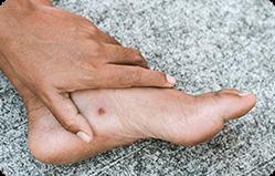 """טיפול בפצעים וכיבים ברגליים -ד""""ר קנטרובסקי"""